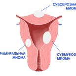 Применение комбинированных оральных контрацептивов при гиперпластических процессах эндометрия и миомах матки